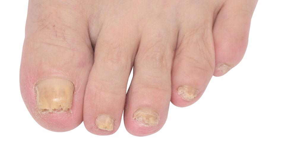 schimmelnagel door nagellak