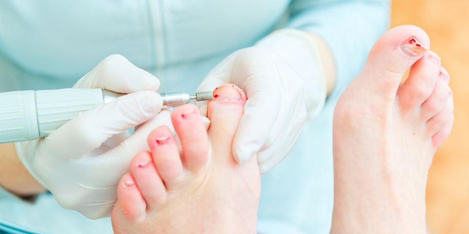 nagellak verwijderen door pedicure